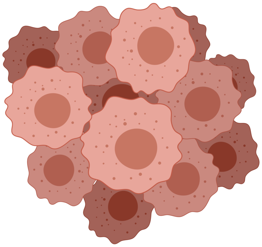 Basal Cell Carcinoma. Analysis of 395 cases localized in the neck, ear and nose region